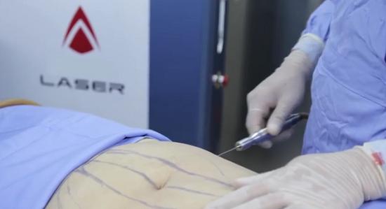 Hút mỡ bụng chỉ được phép tại bệnh viện đa khoa hoặc bệnh viện chuyên khoa phẫu thuật thẩm mỹ
