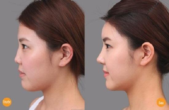 Kết quả nâng mũi bằng chất làm đầy