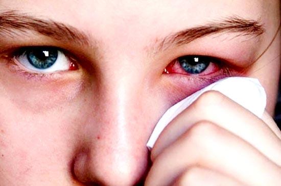 mẹo chữa đau mắt hàn 2