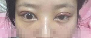 cắt mí mắt bị lệch 1