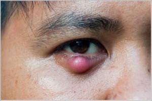 nổi hạt trắng ở mí mắt dưới 4