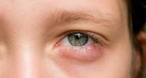 nổi hạt trắng ở mí mắt dưới 6