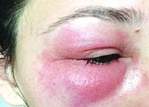 bọng mắt bị sưng và đau 2