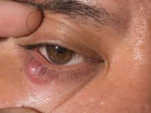 bọng mắt bị sưng và đau 3