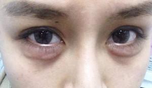 bọng mắt bị sưng và đau 5