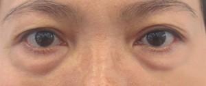 mắt bị sưng mí dưới 1