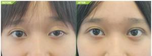 người mắt to mắt nhỏ 3