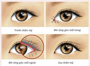 bài tập giúp mắt to hơn 6
